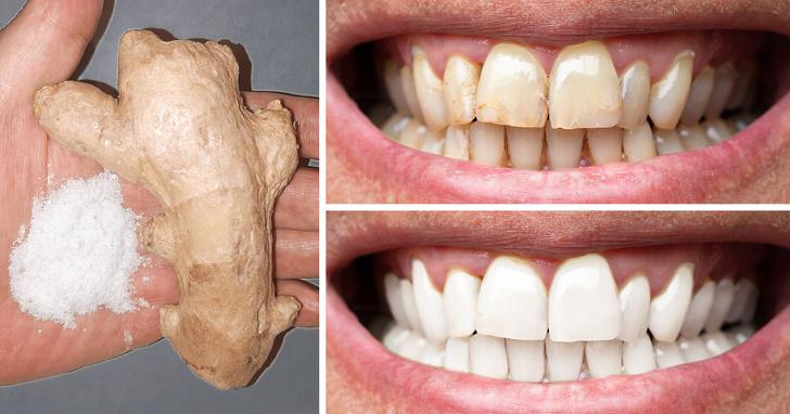 8 cách tự nhiên để làm cho răng trắng hơn - dùng gừng và muối