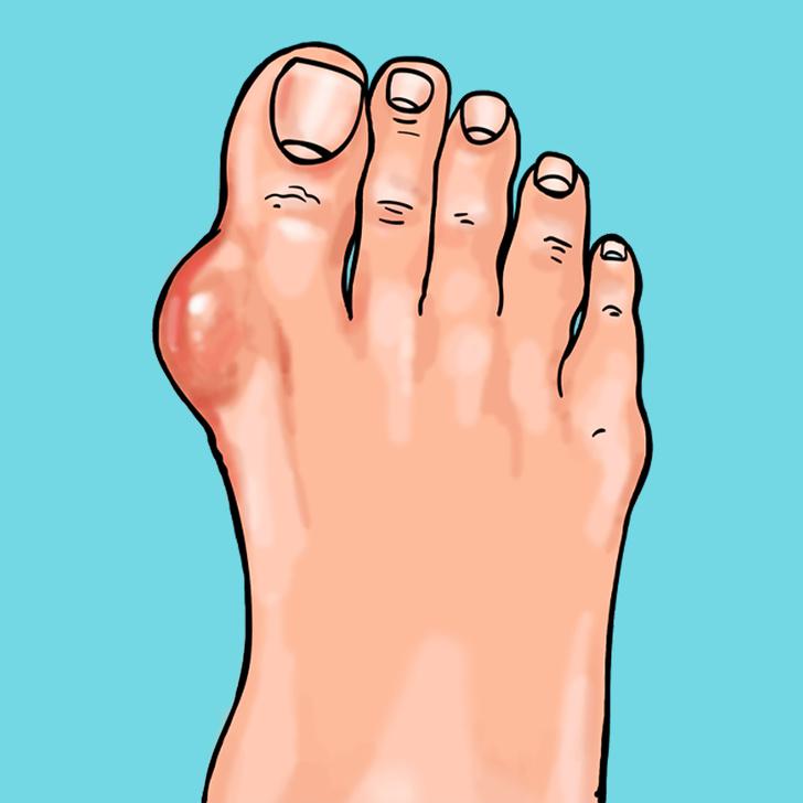 Viêm khớp bàn chân