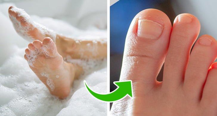 Móng chân mọc ngược vào da