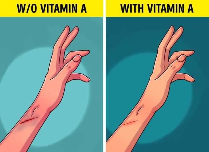 Giúp chữa lành vết thương nhanh hơn