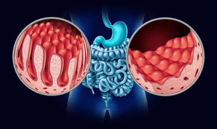 Minh họa 3D giải phẫu ruột với nhung mao bình thường và niêm mạc ruột non bị tổn thương như một rối loạn tự miễn của hệ thống tiêu hóa với đại tràng và dạ dày