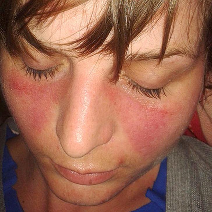 Triệu chứng phát ban trên mặt khi mắc bệnh Lupus